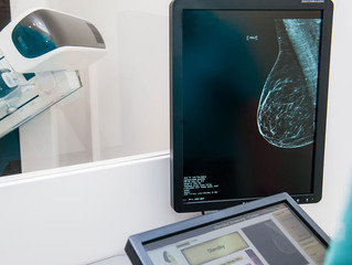 Can 3D Imaging Save You From Breast Cancer?
