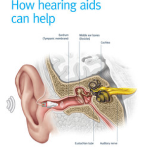 How can hearing aids help?