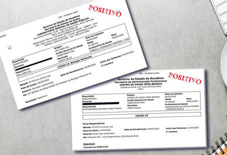 Teste confirma que policial penal de Rondônia foi reinfectado pelo Coronavírus