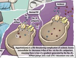 Biochem Ch 7 case 6 changes_edited.jpg