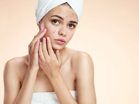 14 tips qué te ayudarán a prevenir y a mejorar el acné