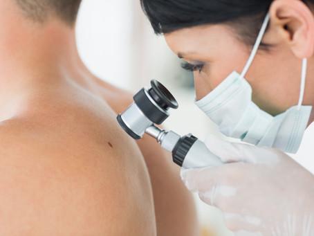 Factores que provocan el cáncer en la piel.