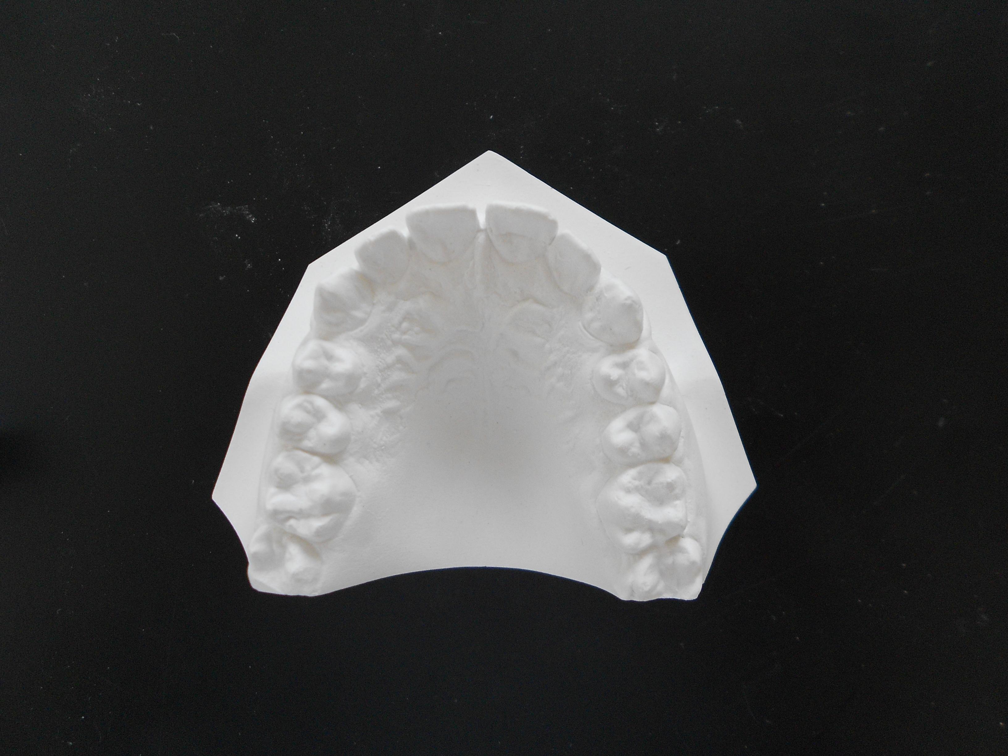 Modèle maxillaire supérieur