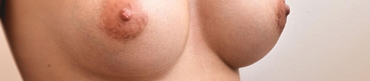 chirurgie esthétique plastique seins vincent caosli