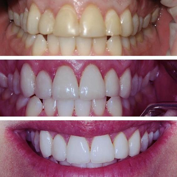 cosmetic dental restoration, veneers, dental office in manhattan, cosmetic denistry, teeth whitening, smile makover