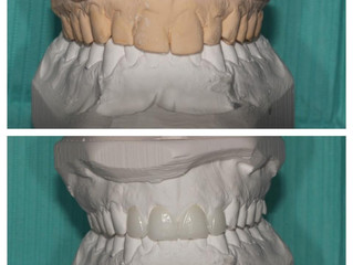 How will my final dental restoration look like?
