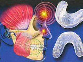 Teeth Grinding(Bruxism) Can Give You A Headache