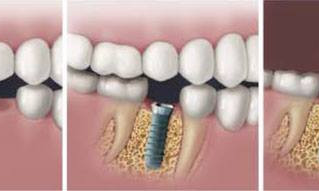 What's an implant?
