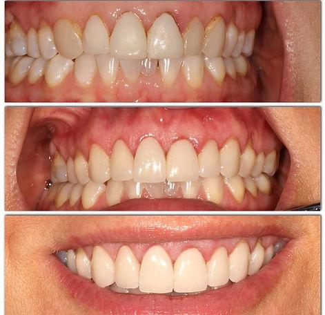 healthy gums, teeth cleanin, check up, dentist in manhattan, 10022