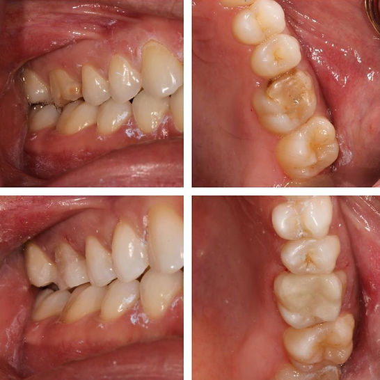 root canal, cavity, whitening, checkup and teeth cleaning, white teeth, dentist in manhattan, NYC DENTIS