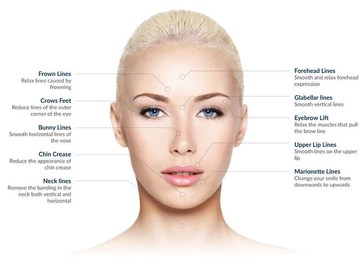botox-treatment-areas-1024x773.jpg