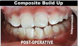 Composite Build up