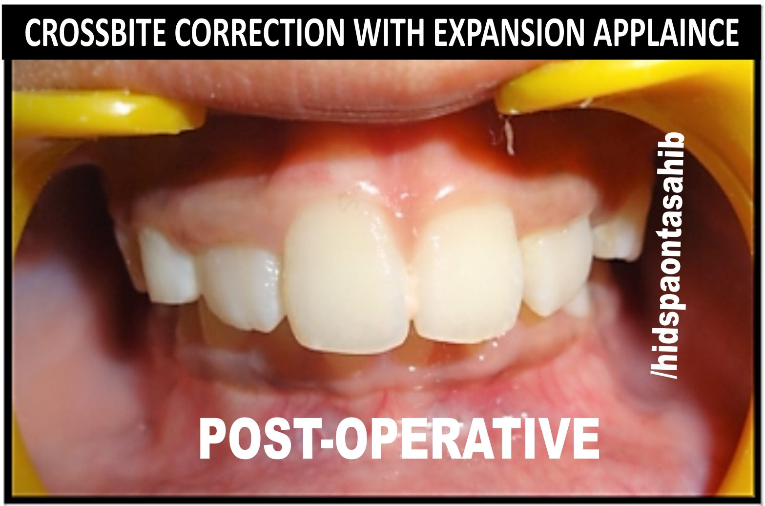 CROSSBITE CORRECTION WITH EXPANSION