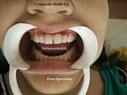Composite Build up (1)