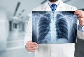 Zastosowanie CPAP w wentylacji pacjentów z COVID-19