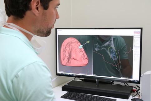 Virtuele planning implantologie Tandarts Louis Pollaris
