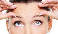 Botox Dysport Testa Olhos Glabela