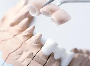 Technical shots on a dental prothetic la