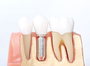 Generic Dental Implant Study Analysis Cr