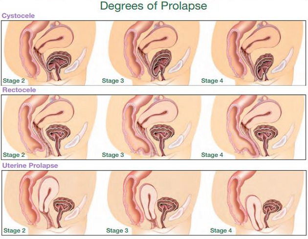 degrees of prolapse.PNG