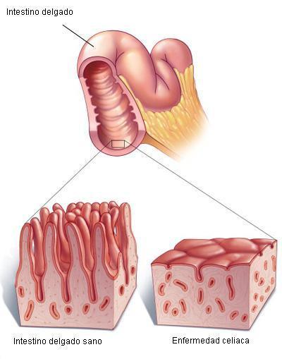 Síntomas de un celiaco