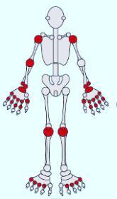 Medicación artritis psoriásica