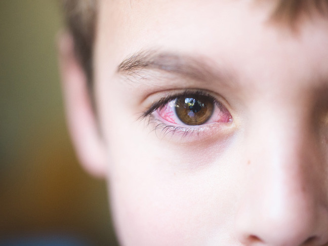 artritis idiopática juvenil sistémica