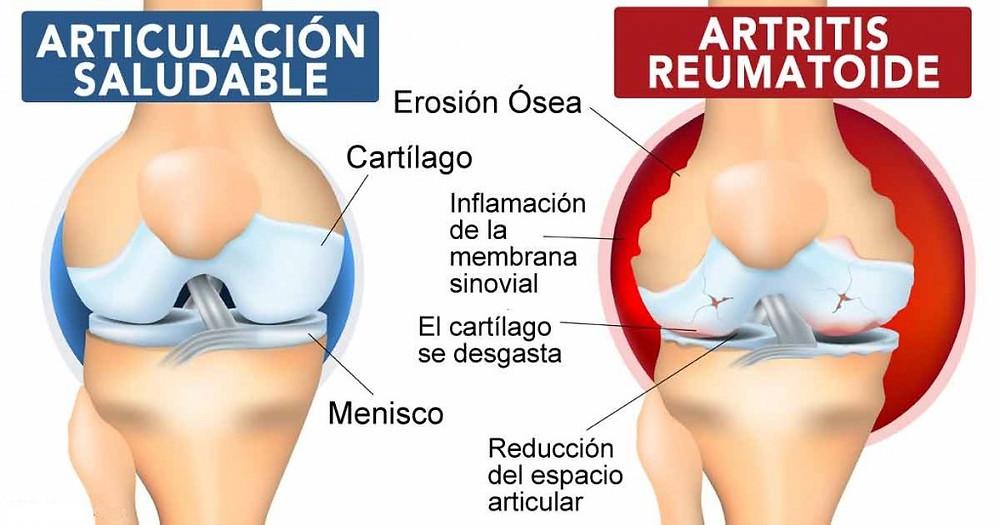 Artritis reumatoide síntomas