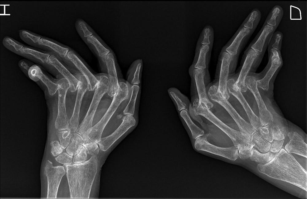 Artritis reumatoide manos