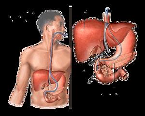 Diagnóstico enfermedad celiaca
