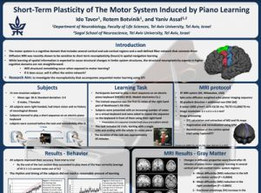 Short-Term Plasticity of The Motor System Induced by Piano Learning