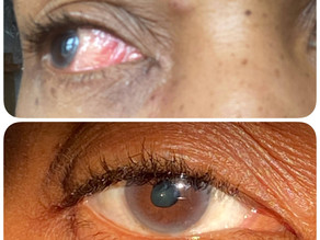 My Uveitis Journey - living with flare ups