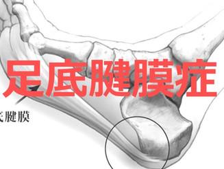 足底腱膜症