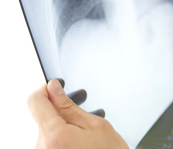 Diagnose bei CMD