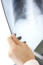 Mesothelioma Screening, Symptoms and Diagnosis