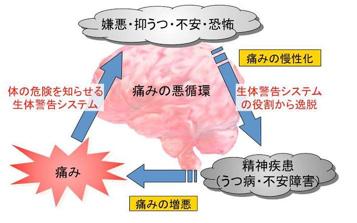 痛み、抑うつの悪循環.jpg