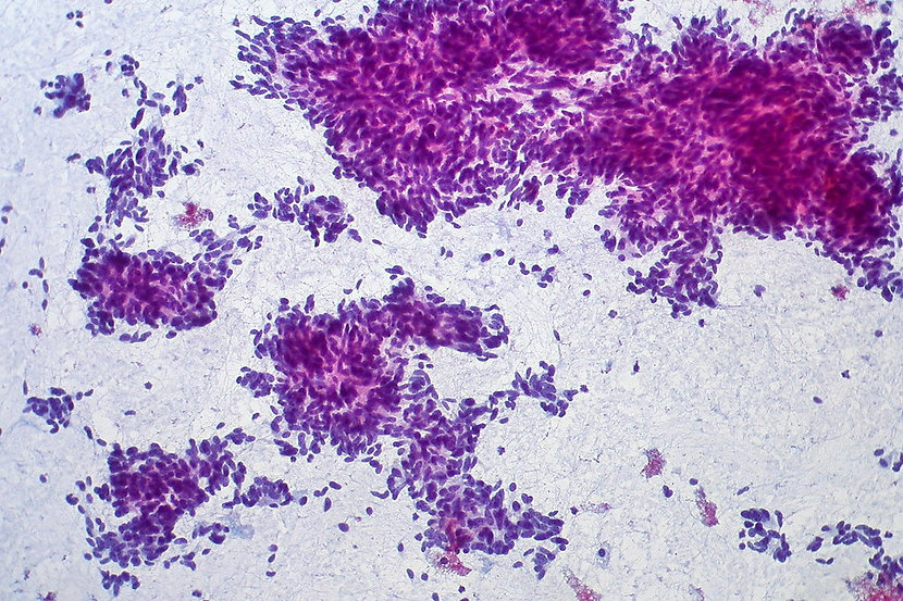"""""""Carcinoid Tumor of Lung, FNA"""" by euthma"""