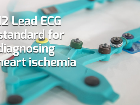 12 Lead ECG is standard of care medical exam for diagnosing heart ischemia