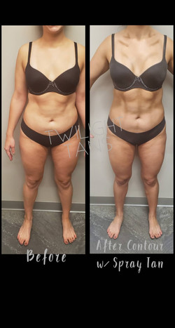 Contour Tan- Before & After