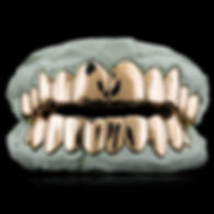 custom-solid-gold-grillz_grande.jpg