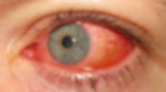 red eye.png