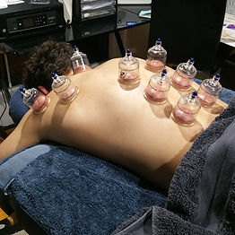 Alex Cupping.jpg