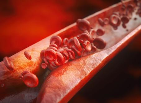 Meet the World's Greatest Killer, Ischaemic Heart Disease