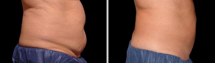 4.-Antes-y-despues-tratamiento-abdomen-R