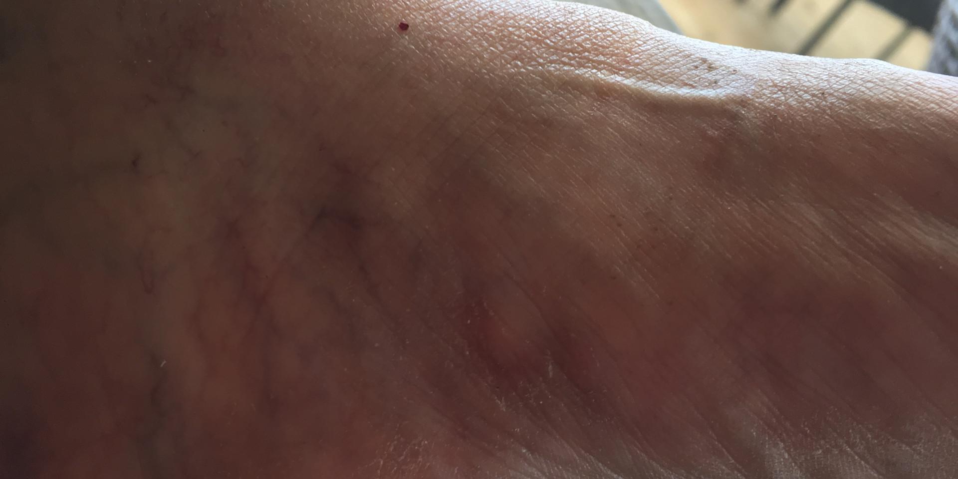 Healed cut 4 weeks later