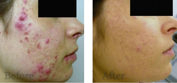 acne-laseripl_edited.jpg