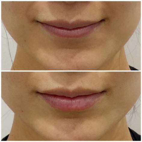 Lips7.jpeg