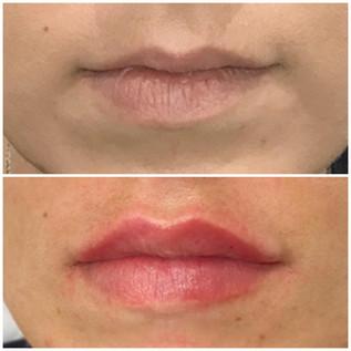 Lips3.jpeg