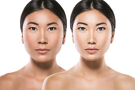 Asian-woman-after-plastic-surgery-100847