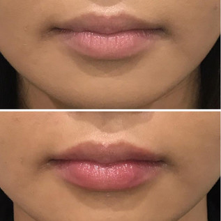 Lips11.jpeg
